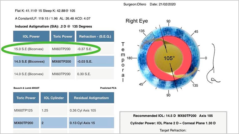 calculadora lente intraocular tórica