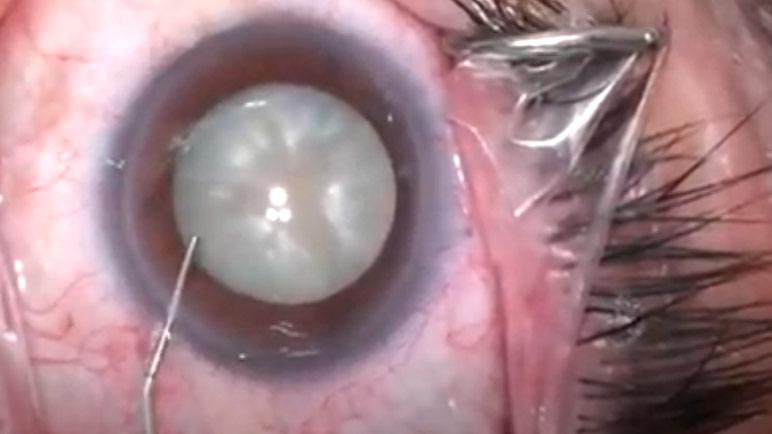 duracion cirugia cataratas
