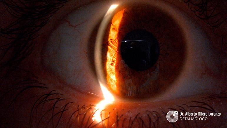 gotas para ojo seco por uso pantallas y lentillas