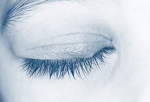 blefaritis orzuelo