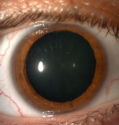Ojos dilatados 1
