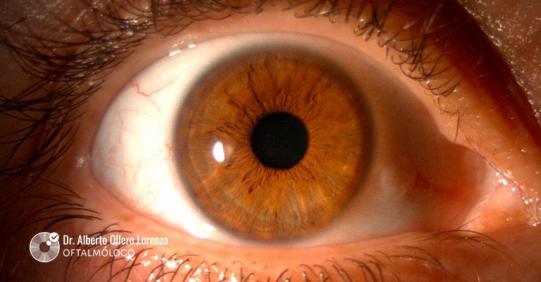 ojo seco con menisco lagrimal escaso