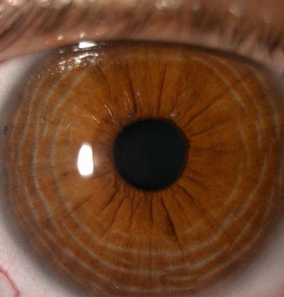 Ojos dilatados 2