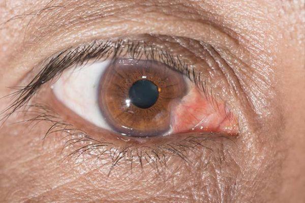 tratamiento pterigium