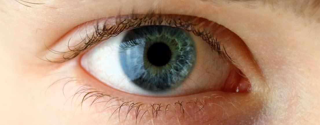sindrome ojo seco