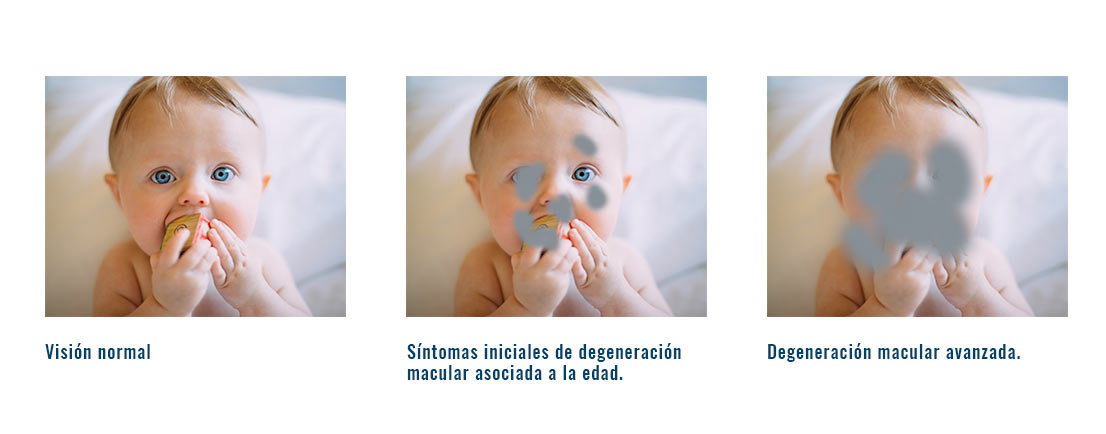 sintomas degeneracion macular