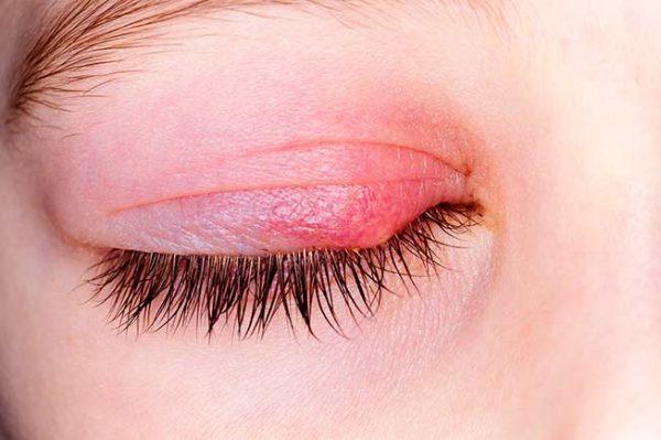 tratamiento blefaritis