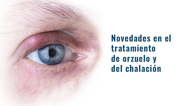 tratamiento orzuelo chalacion